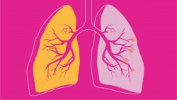 4 breathing exercises for COPD