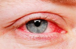 Easy Hacks to Deal and Heal Common Eye Infections