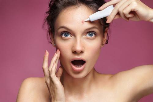 Girl showing her acne